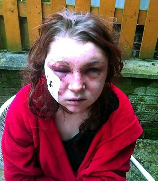 HORRIFIC injuries . . . Megan Birch