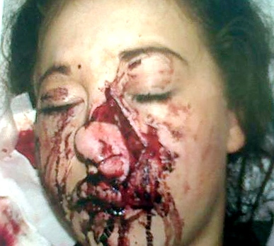 SHAW teenager Chloe Walker after she was attacked by a dog while visiting a friend�s relative