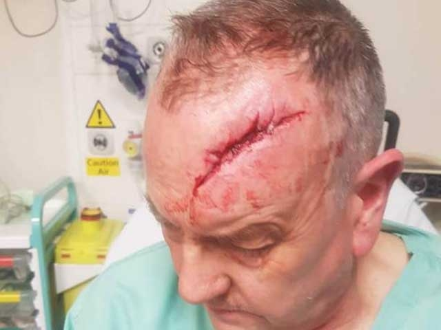 The 58-year old man suffered a serious head injury