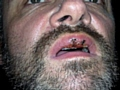 Stuart Corry mouth injuries