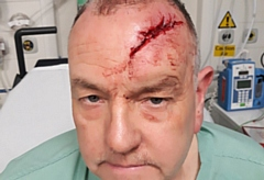 Paul Schofield suffered a horrendous head injury.